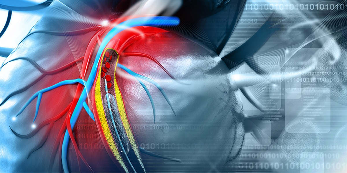 Interventional Cardiology market