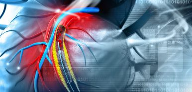 Covering new grounds: The global interventional cardiovascular market